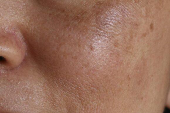 hyperpigmentation-dark-spots-melasma