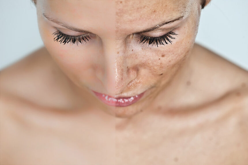 How To Get Rid Of Dark Spots On The Face For Mature Women