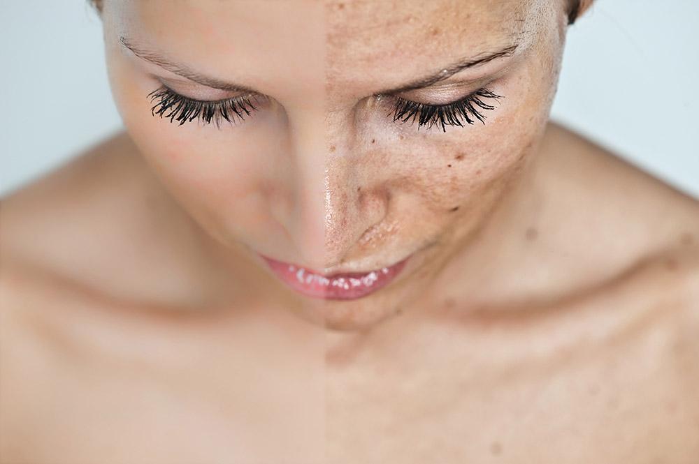 dark spots skin microdermabrasion